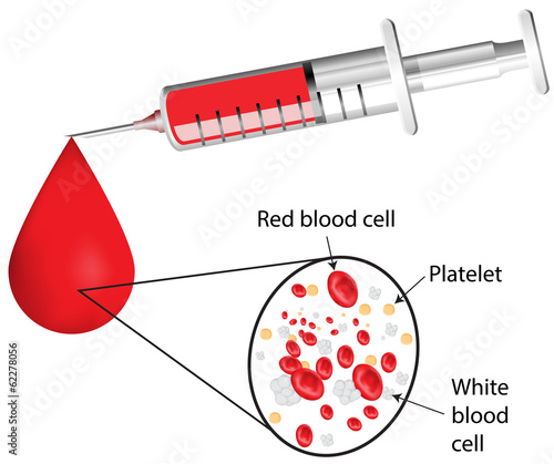 Labeled Needle and Blood Diagram