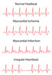 EKG Traces of Normal and Pathologies