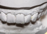 Dental gypsum model mould of teeth in plaster