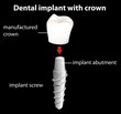 A dental implant with crown