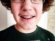 boy with dental brace