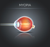 Human vision disorder, Myopia.  Myopia is being shortsighted.