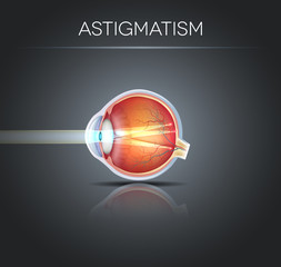Human vision disorder, Astigmatism. Anatomy of the eye, cross se