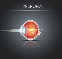 Human vision disorder, Hyperopia.  Hyperopia is being farsighted