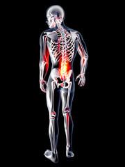 Anatomie - Rückenschmerz