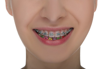 Closeup of smiling mouth with braces on teeth