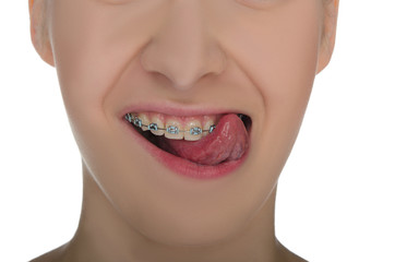 Closeup of smiling mouth with braces