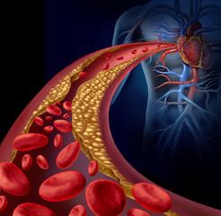 Clogged Artery