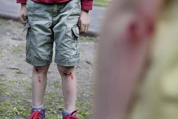 Deutschland, Köln, Jungen auf dem Spielplatz verletzt