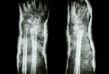 fracture distal radius (Colles' fracture) and cast