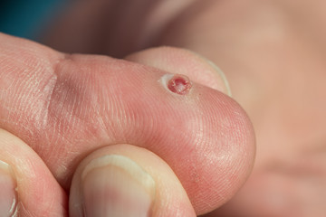Pyogenic granuloma wound on a finger