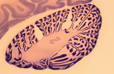 Cross section of human brain tissue, a specimen held at the National Medical Museum, Washington D.C., USA