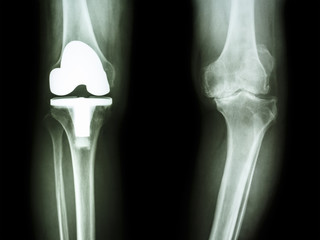osteoarthritis knee patient and artificial joint