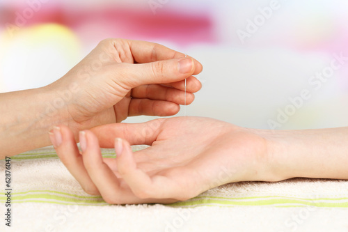 Acupuncture on hand, close up. Isolated on white