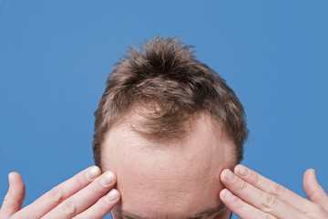 Male Caucasian Forehead Hairline