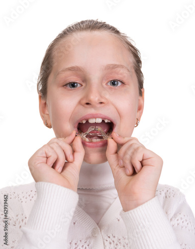 Girl putting on medical braces for orthodontic treatment