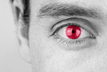 Man with red eye