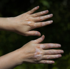 Hand with vitiligo skin condition