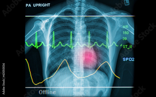 Abstract health and medical backgrounds showing x-ray image and