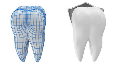 Tooth Rotation with Protection Grid and Metal Shield. Seamless