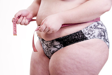 Detail of the trunk of a girl with obesity and cellulite when me