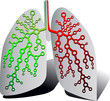 Pulmonary Diagnostics