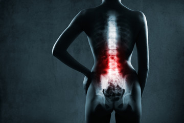 Spine in x-ray. The lumbar spine is highlighted by red colour.