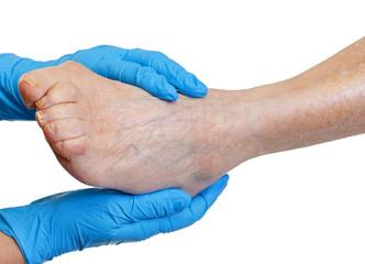 Vena varicosity in un inguine