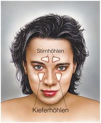 Stirn- und Kieferhöhlen.Nasennebenhöhlen