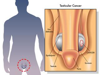 cancro del testicolo