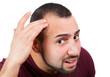 Mann mit mit Haarausfall