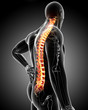 Anatomy of male back pain in gray