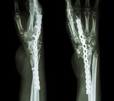 Fracture wrist and chronic infection. It was operated and intern poster