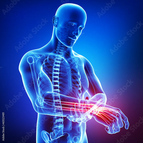 Anatomy of male hand pain in blue
