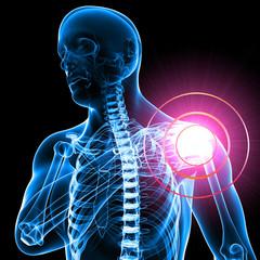 Anatomy of male Shoulder pain in black