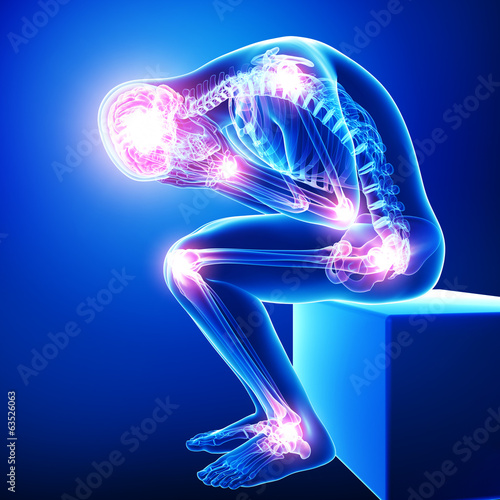 Leinwanddruck Bild Anatomy of male brain pain with all joints pain in blue