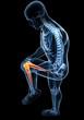 Anatomy of male knee pain in black