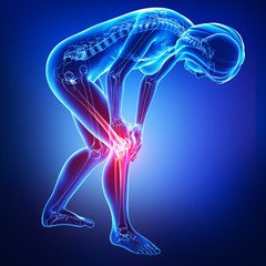 Anatomy of female knee pain in blue