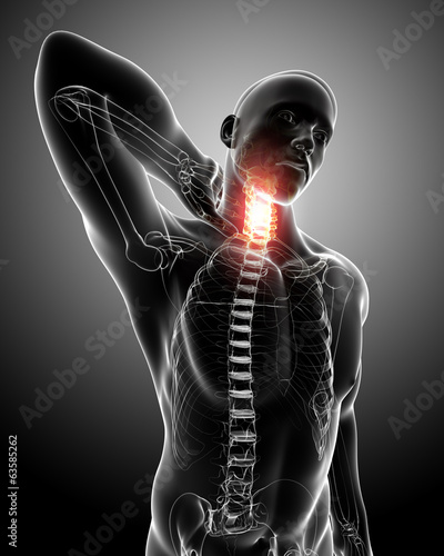 Anatomy of male neck pain in gray