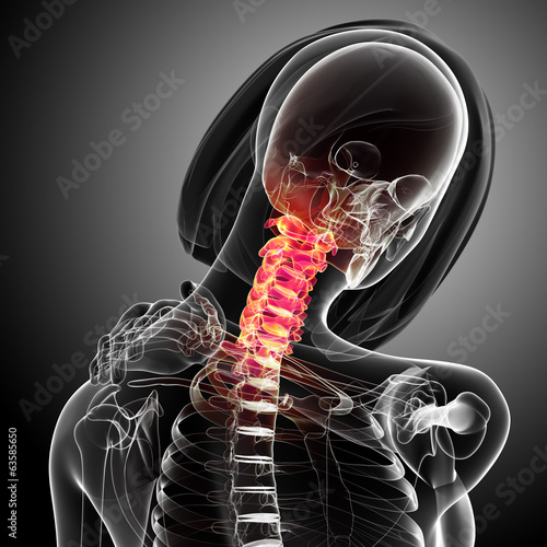 3d Anatomy of female neck pain in x-ray