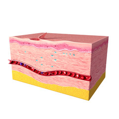 Anatomy of  tissue repair in human skin