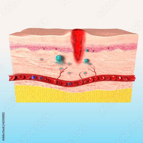 3d first step of tissue repair in human skin