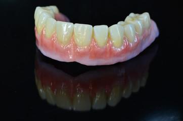Zahnprotese