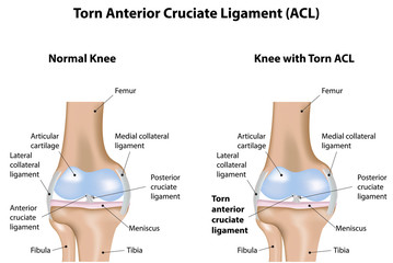 Torn Anterior Cruciate Ligament Knee Joint