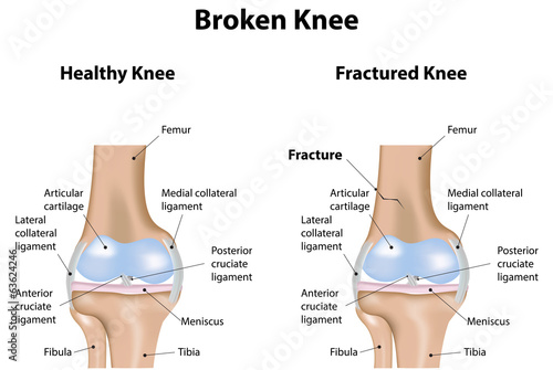 Broken Knee Labeled Diagram