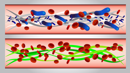 illustration of  Red blood cells and bacteria in artery vector
