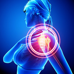 3d Anatomy of female shoulder pain in blue