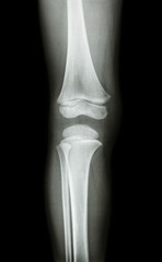 film x-ray knee AP(antero-posterior) of child