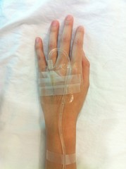 patient's hand with IV tube