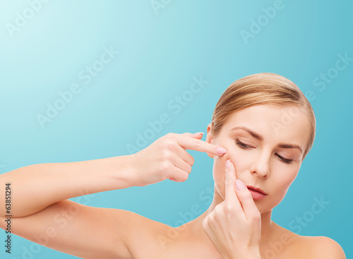 young woman squeezing acne spots